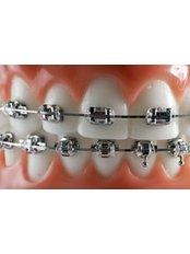 Braces - Orthodontic Clinic