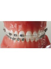 Accelerated Braces™ - Orthodontic Clinic