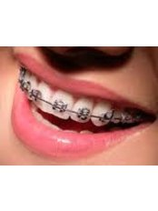 Metal Braces - Orthodontic Clinic