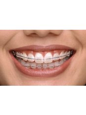 Adult Braces - Orthodontic Clinic
