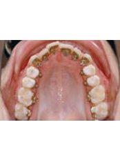 Incognito™ Braces - Orthodontic Clinic