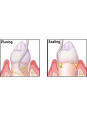 Scaling and Root Planing - Dental Palermo