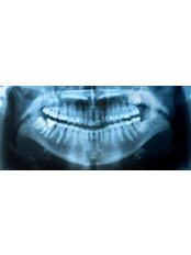 Dental X-Ray - Dental Palermo