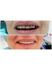 Dental Bridges - VB Dental Clinic