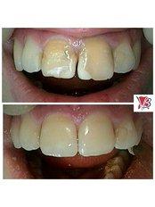 Veneers - VB Dental Clinic