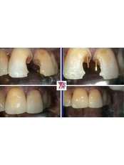 Composite Resin Inlay or Onlay - VB Dental Clinic