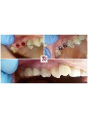 Immediate Implant Placement - VB Dental Clinic