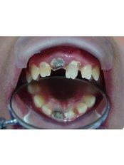 Cosmetic Dentist Consultation -