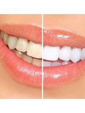 Chemical Teeth Whitening -