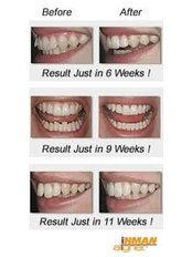 Adult Removable Braces - Compass Dental Care
