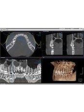 3D Dental X-Ray - Compass Dental Care