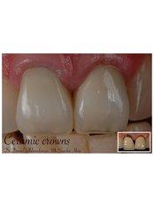 Dental Crowns - Claremont Dental