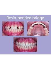 Maryland Bridge - Claremont Dental