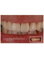 Porcelain Veneers - Claremont Dental