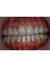 Invisalign™ - Claremont Dental
