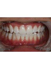 Zoom! Teeth Whitening - Claremont Dental
