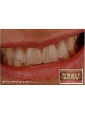 Veneers - Claremont Dental