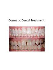 Dental Implants - Claremont Dental