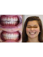 Total smile Makeover - Luxadent Dental Office - Johan Willemsens