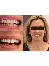 Smile Makeover - Luxadent Dental Office - Johan Willemsens