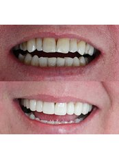 Veneers - Luxadent Dental Office - Johan Willemsens