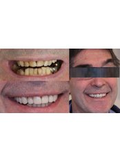 Dental Crowns - Luxadent Dental Office - Johan Willemsens