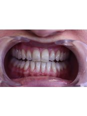 Teeth Whitening - Luxadent Dental Office - Johan Willemsens