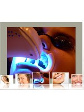 Laser Bleaching - Luxadent Dental Office - Johan Willemsens