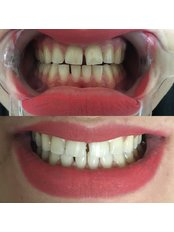 Laser Teeth Whitening - Stomatološka Ordinacija Dr Kamenica