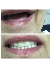 Dentures - Stomatološka Ordinacija Dr Kamenica