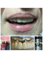Implants dental - Stomatološka Ordinacija Dr Kamenica