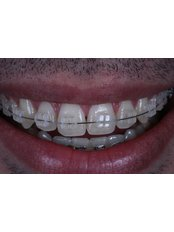 Aparelho / Braces - Prof. Dr. Rowan Vilar - Dental Implants and Venners Specialist