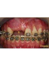 Bone Graft  - SB Specialized Dental Office Brazil