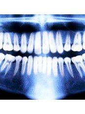 Dental X-Ray - SB Specialized Dental Office Brazil