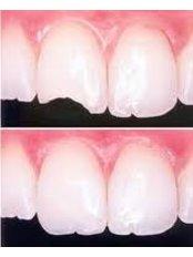 Fillings - SB Specialized Dental Office Brazil