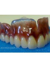 Dentures - SB Specialized Dental Office Brazil