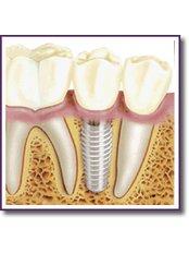 Dental Implants - SB Specialized Dental Office Brazil