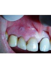 Treatment of Dental Abscess - SB Specialized Dental Office Brazil