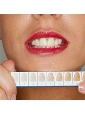 Dental Crowns - SB Specialized Dental Office Brazil