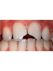 Dental Bonding - SB Specialized Dental Office Brazil