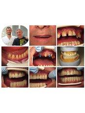 Flexible Partial Dentures - BG Denta