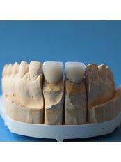 Dental Crowns - BG Denta