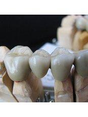 Dental Bridges - BG Denta