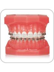 DAMON braces - BG Denta