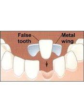 Maryland Bridge - Dental Clinic Sofia Crown