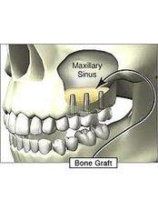 Sinus Lift - Dental Clinic Sofia Crown