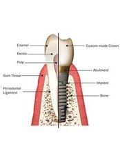 Dental Implants - Dental Clinic Sofia Crown