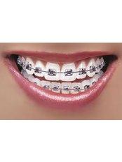Braces - Dental Clinic Sofia Crown