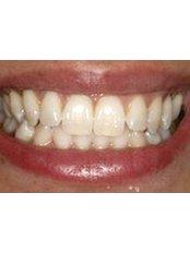 Veneers - Dr. Eva Perchinska - Eurovita Dental
