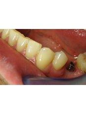 Dentist Consultation - iDENTAL